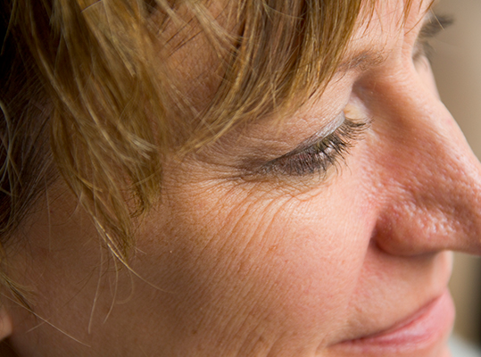 Tratamiento arrugas en Jerez